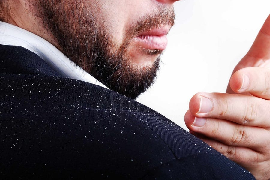 11 Natural Remedies For Dandruff