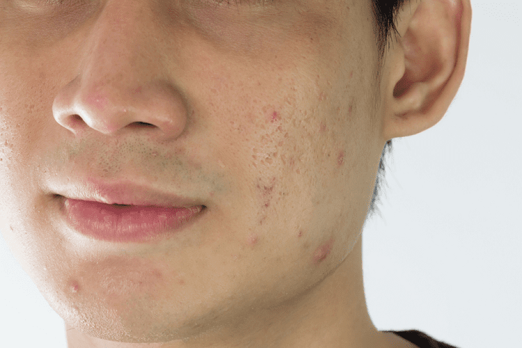 What Causes Pimples In Men?